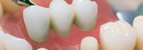 мостовое протезирование зубов