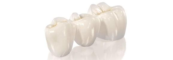 Циркониевые коронки на зубы цена Краснодар