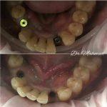 Имплантиция зубов фото