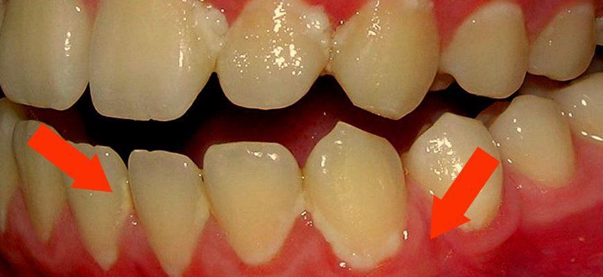 Белый налет на зубах около десен что это