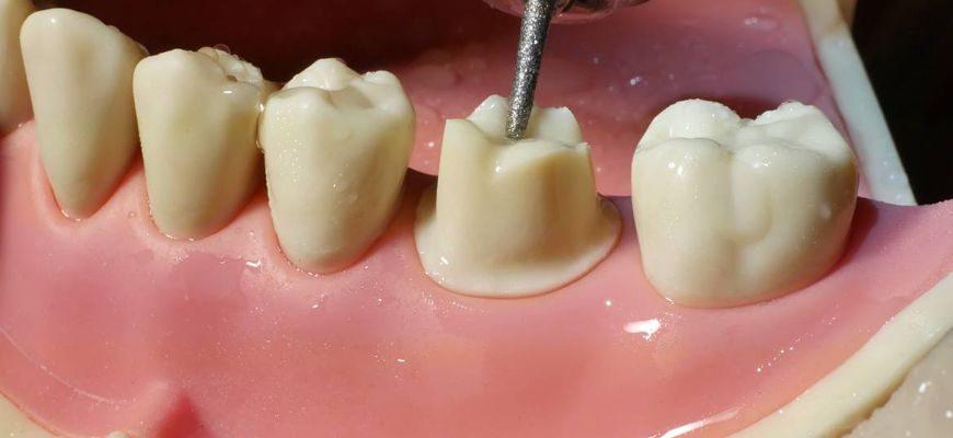 Болит зуб после обточки под коронку что делать