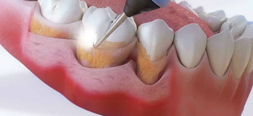 что будет если не лечить камни в зубах