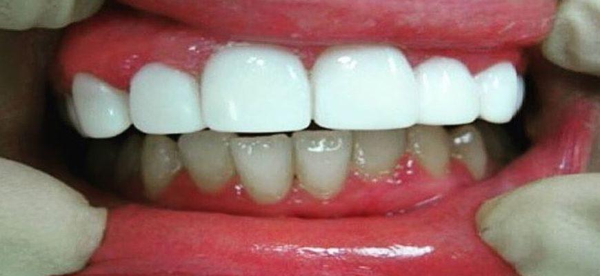 что лучше коронки или виниры на передние зубы