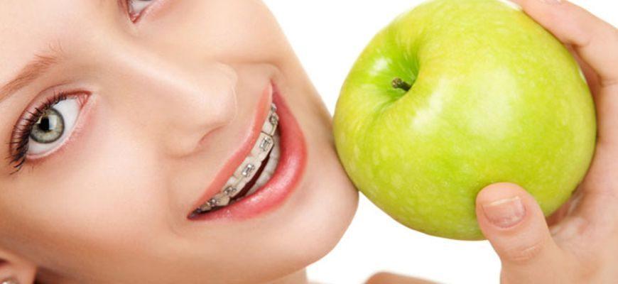 что нельзя есть с брекетами на зубах список