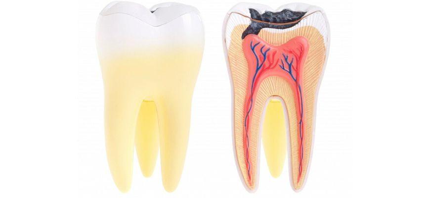 Что такое кариес зуба и как его лечить