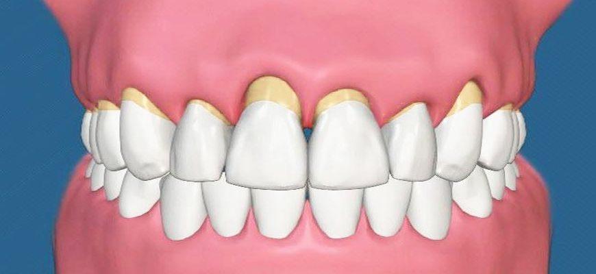 что такое пародонтоз зубов и как лечить его
