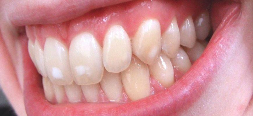 Гипоплазия эмали зубов у взрослых причины и лечение