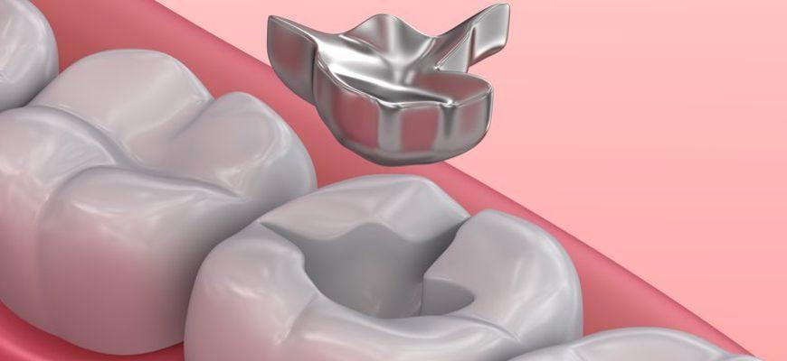 Из за чего может выпадать пломба из зуба