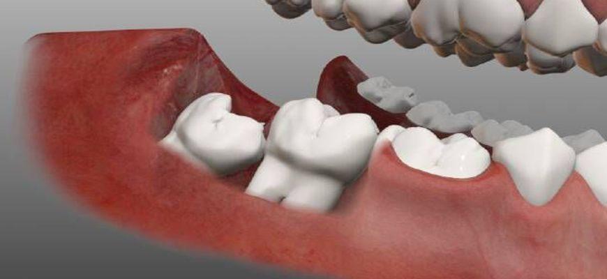 Как снять зубную боль при прорезывании зубов мудрости