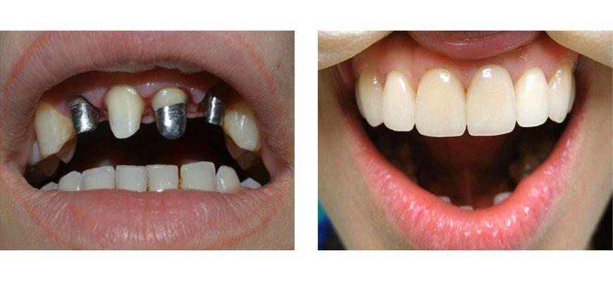 Как ухаживать за зубами из металлокерамики чем чистить