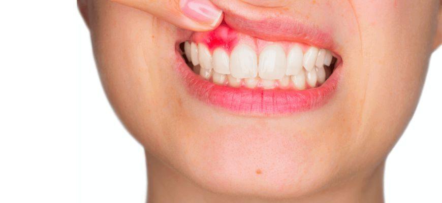 как вылечить кисту зуба без удаления
