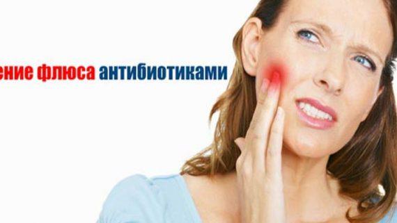 Какой антибиотик пить при флюсе зуба у взрослого