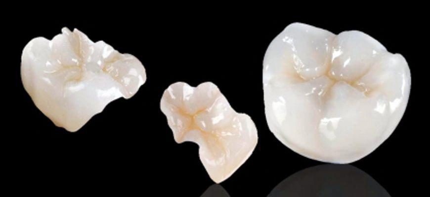 Керамические вкладки на передние зубы что это такое