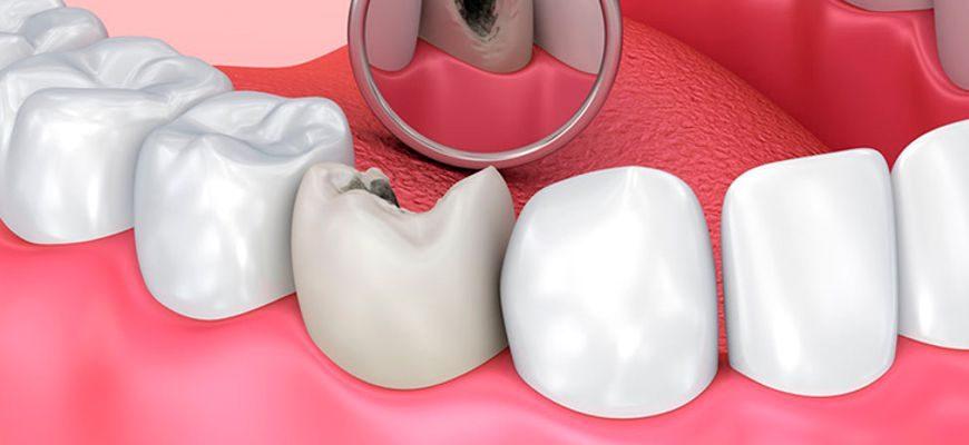 Лечение кариеса зубов и его осложнений на разных стадиях развития