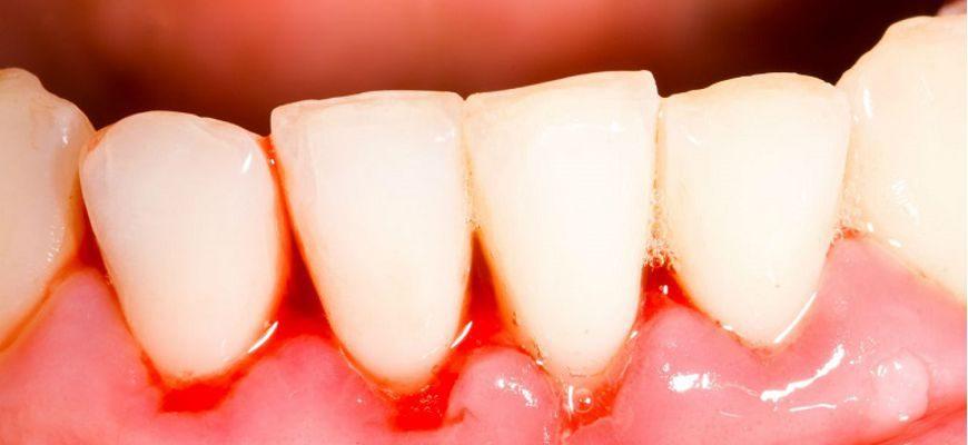 может ли болеть зуб из за проблемы десен