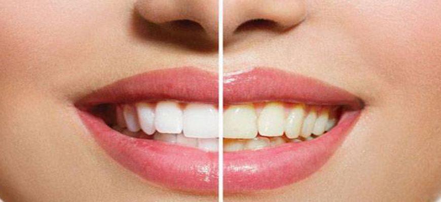 можно ли каждый день чистить зубы пищевой содой