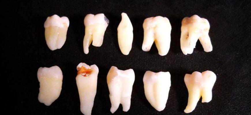 можно ли не удалять корни зубов при протезировании