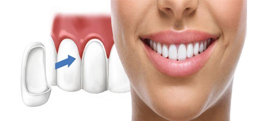Можно ли ставить виниры на передние пломбированные зубы