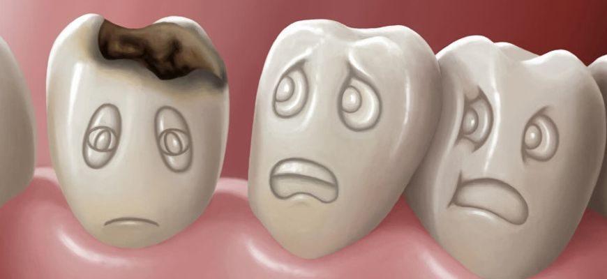 Можно ли вылечить зуб если кариес с корнями