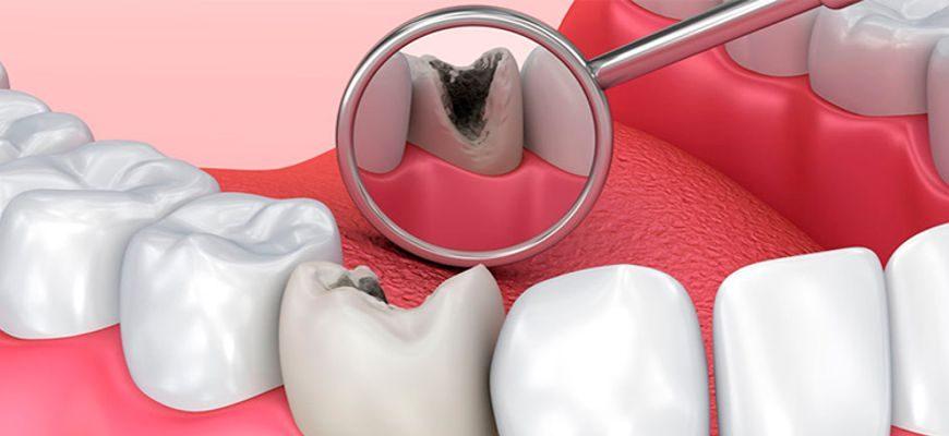 Нужно ли лечить кариес если зуб не болит