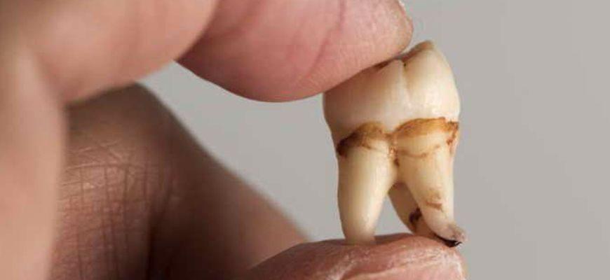 Отвалилась пломба на зубе под ней все черное