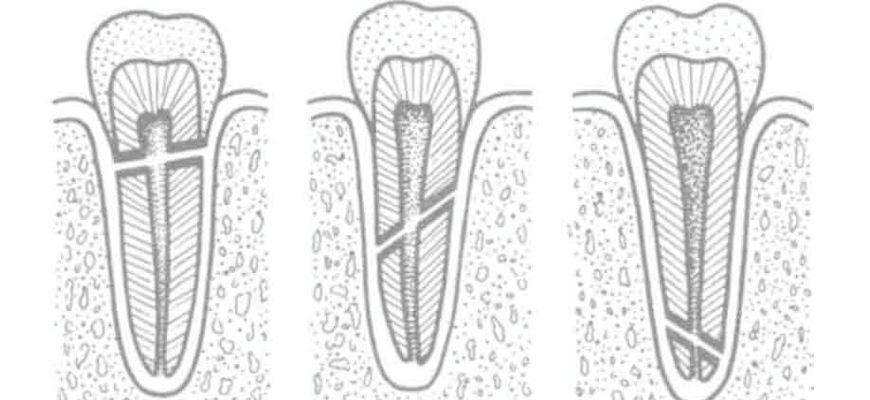 Как понять сломан корень у зуба или нет