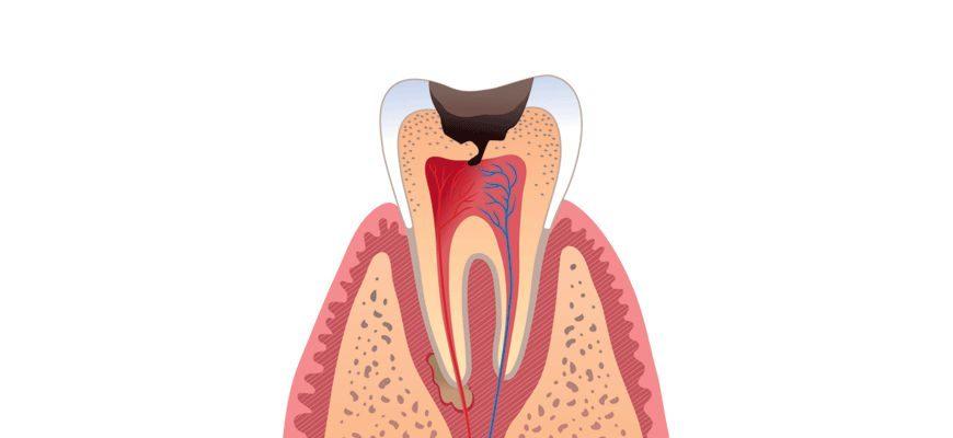 показания к удалению зуба при обострении хронического периодонтита