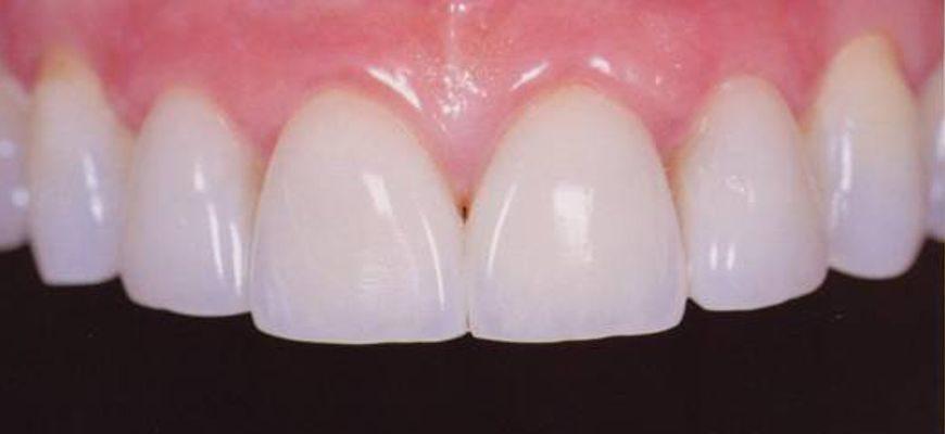 Что лучше на передние зубы пломбы или виниры