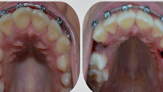 После удаления зуба через сколько можно ставить брекеты