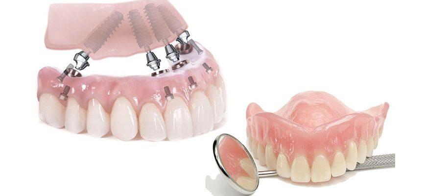 при сахарном диабете как быть с протезированием зубов