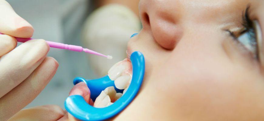 с какого возраста можно делать чистку зубов ребенку