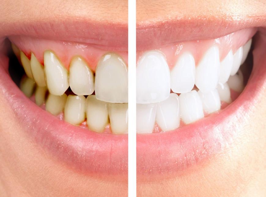 чистка зубов до и после
