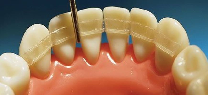 шинирование зубов что это такое как это делается