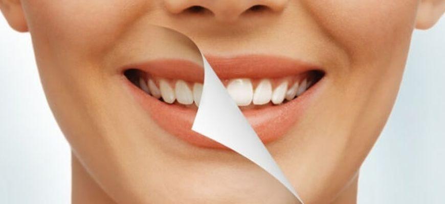 Сколько по времени идет чистка зубов у стоматолога