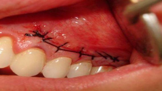 сколько заживает десна после разреза и удаления зуба