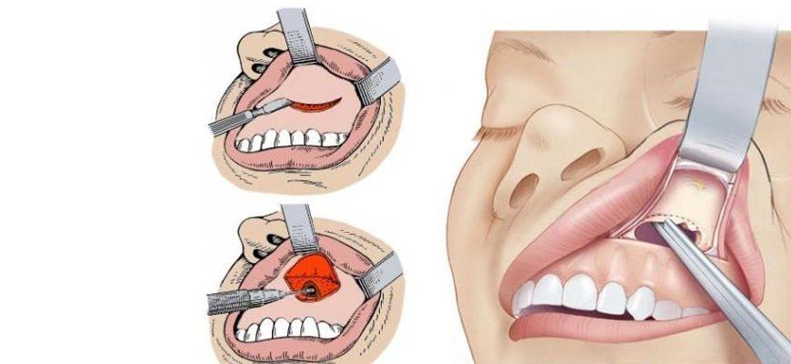 удаление кисты зуба в гайморовой пазухе