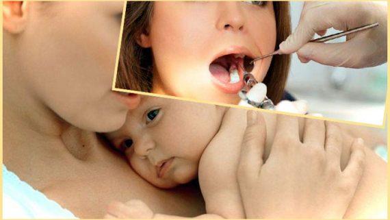 лечение зубов при грудном кормлении