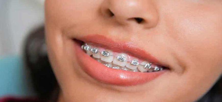 в каком возрасте ставят брекеты на зубы детям