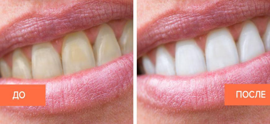 виды отбеливания зубов в стоматологии плюсы и минусы