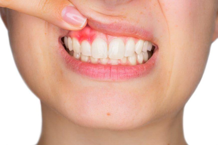 как лечить воспаление надкостницы зуба в домашних условиях