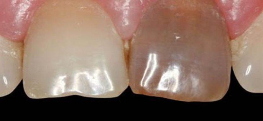 Живой зуб и мертвый зуб