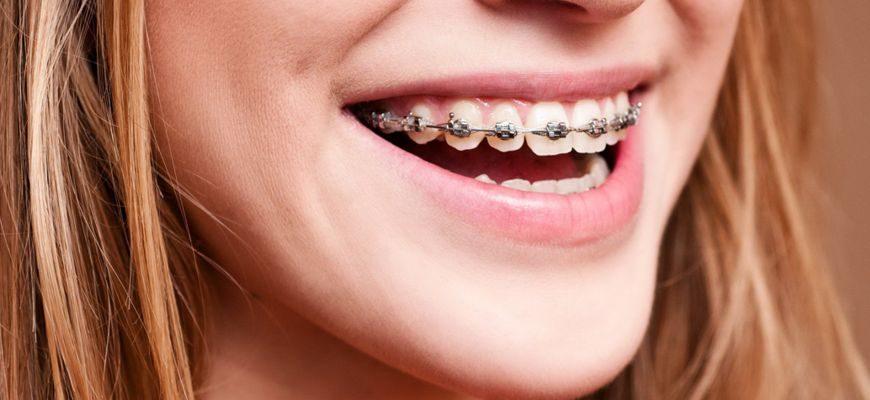 чем отличаются пластины для выравнивания зубов от брекетов