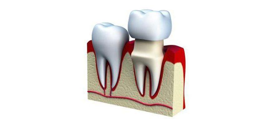 чем отличаются штампованные коронки для зубов от литых