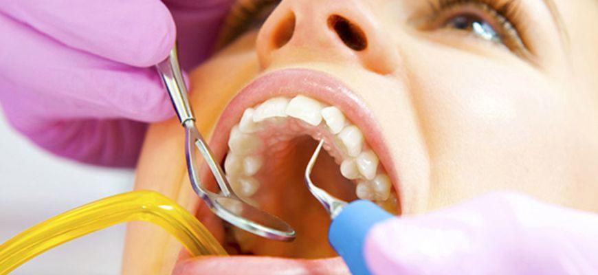 Чистка ультразвуком зубов после удаления зуба