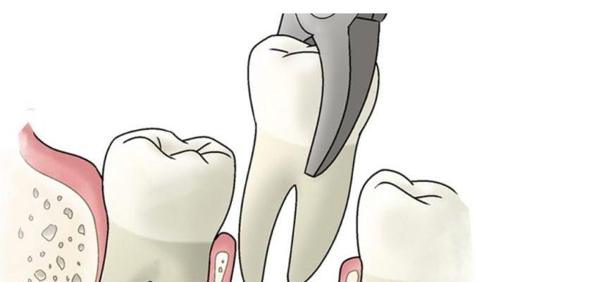 что нужно делать с деснами после удаления зубов