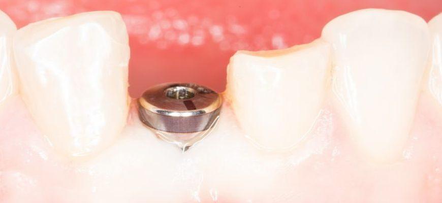 что такое имплантация зубов и больно ли это