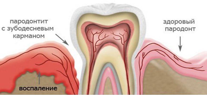 Что такое парадонтит зуба и как его лечить