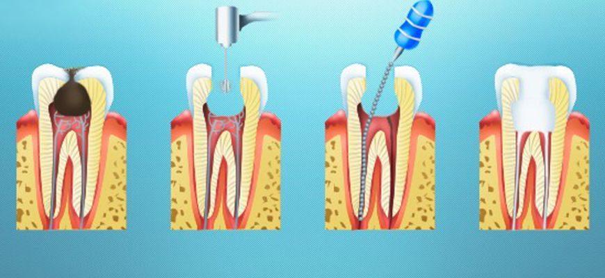 что такое пульпит зуба и как его лечить