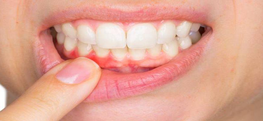 Что такое свищ зуба и как его лечить