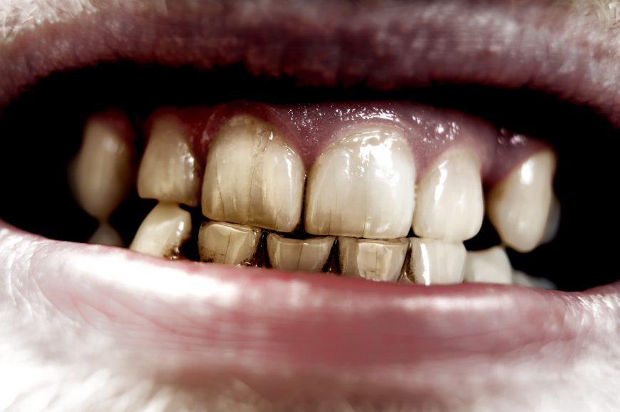 Испорченные зубы